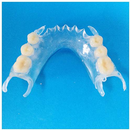Partial Dentures denture professionals